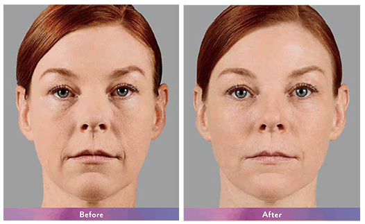 voluma before and after